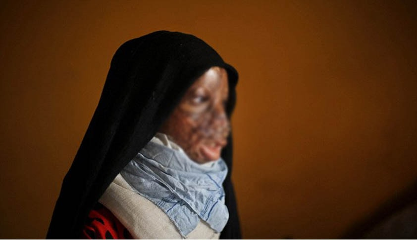 Consider including the names of Acid Attack Victims under the Disability List: Supreme Court [Read Judgment]