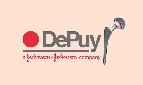 Johnson & Johnson Faulty Hip Implants : SC Closes Case Accepting Centre