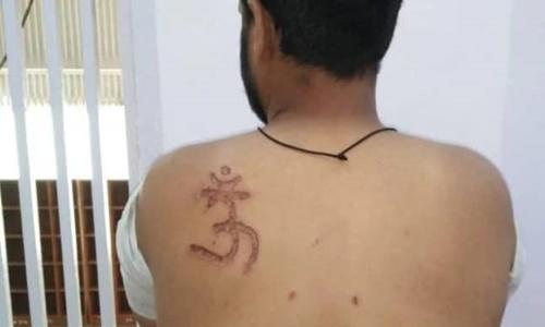 Symbol OM Burn Imprinted On Muslim Inmate in Tihar, Delhi Court Orders Enquiry