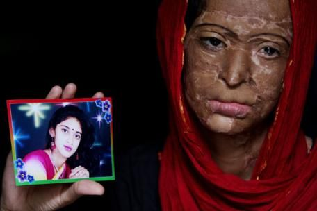 Equality Is Not Enough, Ensuring Equity In Acid Attack Legislation In India